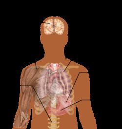 250px-Symptoms_of_Malaria