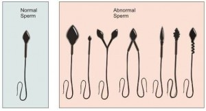 comparison-of-normal-sperm-and-abnormal-sperm