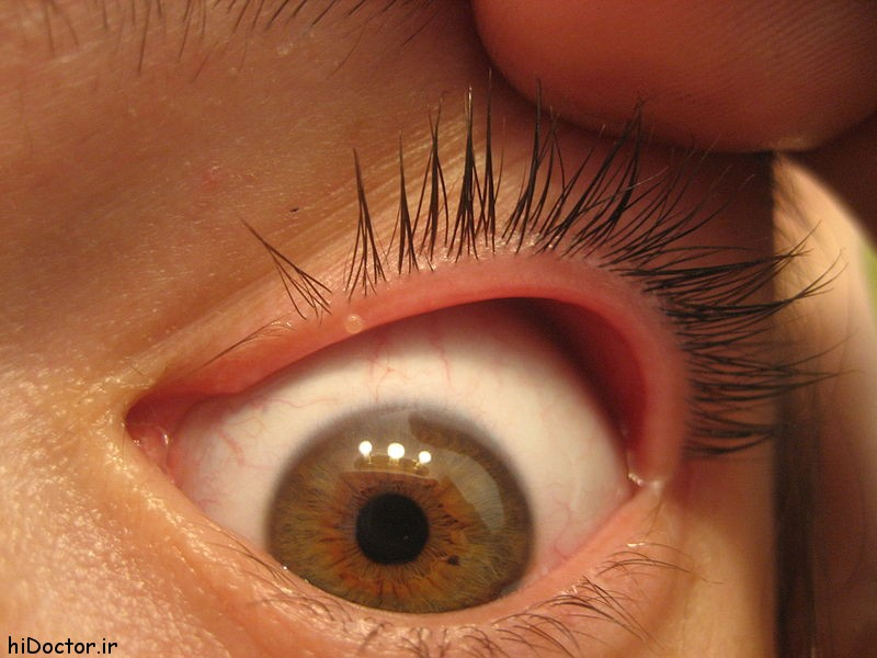 درمان جوش جوشکاری در چشم