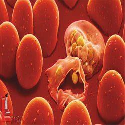 علائم و نشانه های ابتلا به مالاریا / راه درمان مالاریا