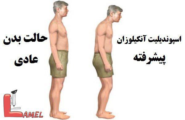 اطلاعاتی در مورد بیماری اسپوندیلیت آنکیلوزان / بیماری مفصلی پیشرونده و مزمن
