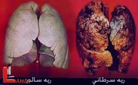 همه چیز در مورد سرطان ریه / علت و عوارض سرطان ریه همراه با روش درمان آن