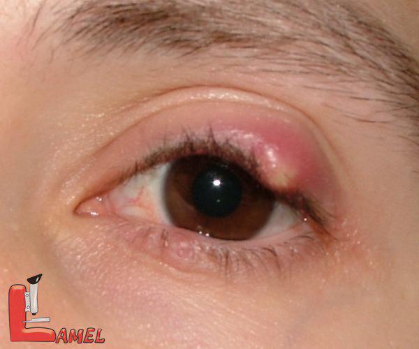 کیست چشم و انواع آن /علت بوجود آمدن برامدگی پلک یا شالازیون