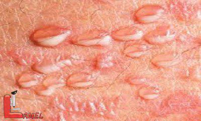 آشنایی با مهمترین بیماری های آلت تناسلی /بیماری های آلت تناسلی