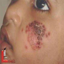 لیشمانيوز جلدی یا بیماری سالک / بیماری مربوط به پشه خاکی