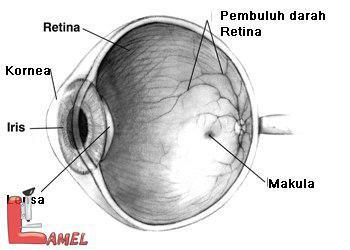 بیماری لبر(LCA) آموروزیس مادرزادی / نکاتی در موردبیماری لبر بیماری چشمی مادرزادی