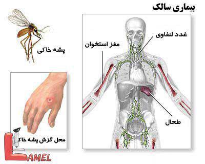 لیشمانیوز جلدی یا بیماری سالک / بیماری مربوط به پشه خاکی