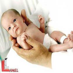کم کاری تیروئید در نوزادان / علل و درمان کم کاری تیروئید در نوزادان