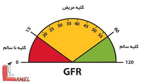 eGFR چیست؟ چندین نکته مهم در مورد بیماری کلیوی