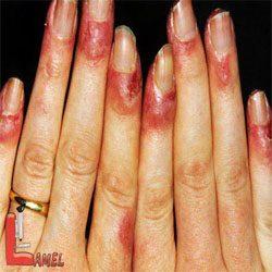 بیماری پلاگر در اثر کمبود نیاسین یا ویتامین B3