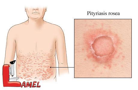 پیتریازیس روزهآ یا جوش پولکی چیست؟ / شایع ترین بیماری پوستی