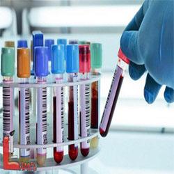 انواع آزمایشات روتین / آزمایش CBC و رنج نرمال آن /تفسیر آزمایش CBC