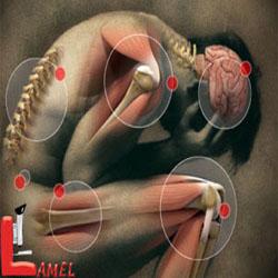 سندرم درد اسکلتی-عضلانی / فیبرومیالژی
