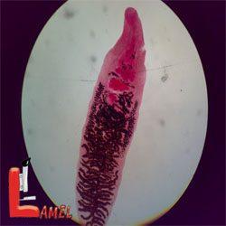 انگل دیکروسلیوم دندریتیکوم dicrocoelium dendriticum