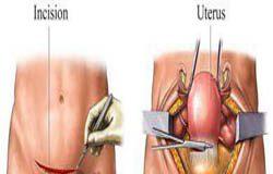 جراحی هیسترکتومی (برداشتن رحم ) چرا و چگونه؟ همه چیز در مورد برداشتن رحم و مشکلات آن
