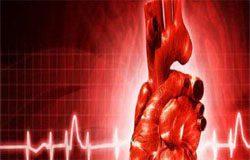 سندرم حاد عروق کرونر یا بیماری acs چیست؟